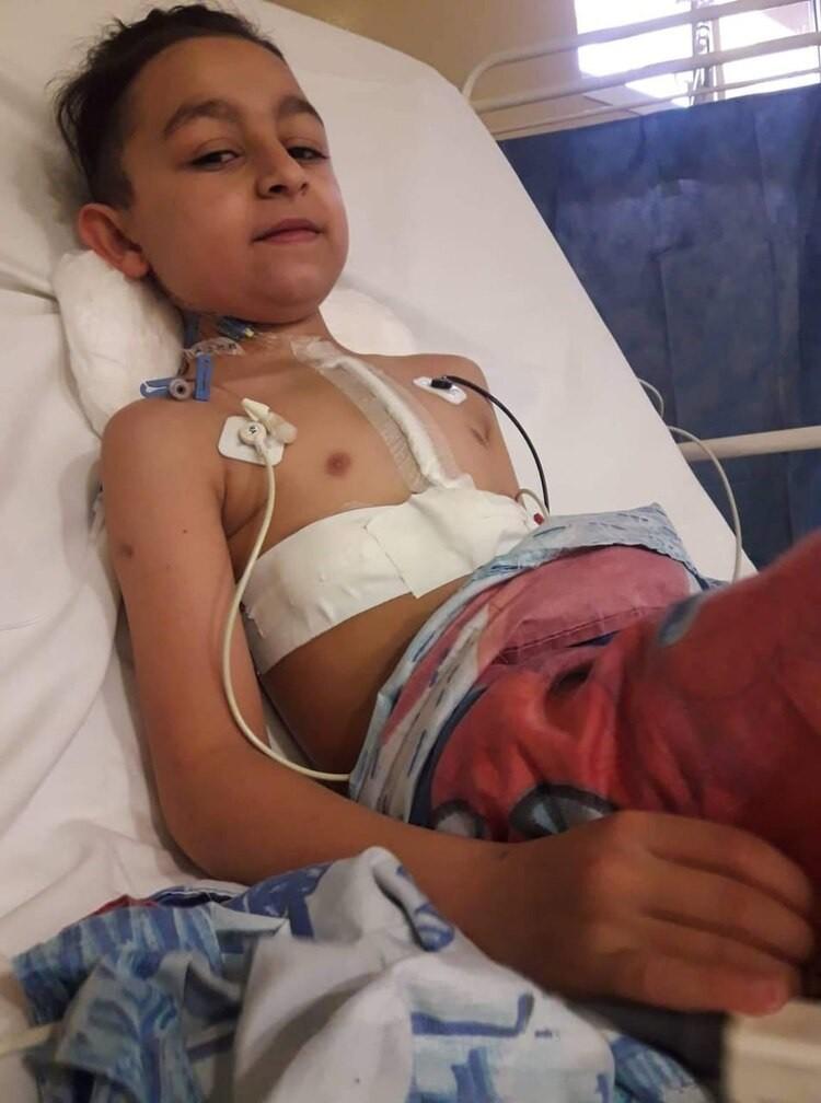 El revolucionario método argentino de reemplazo de válvula aórtica en niños, que con ayuda de la tecnología 3D ya salva vidas