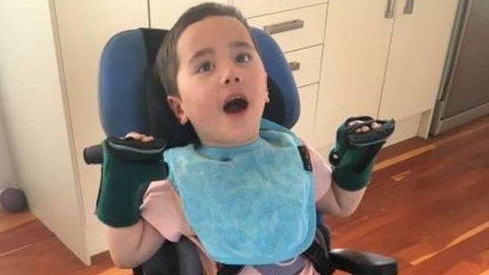 Nene de 2 años se atragantó con una manzana y quedó paralítico