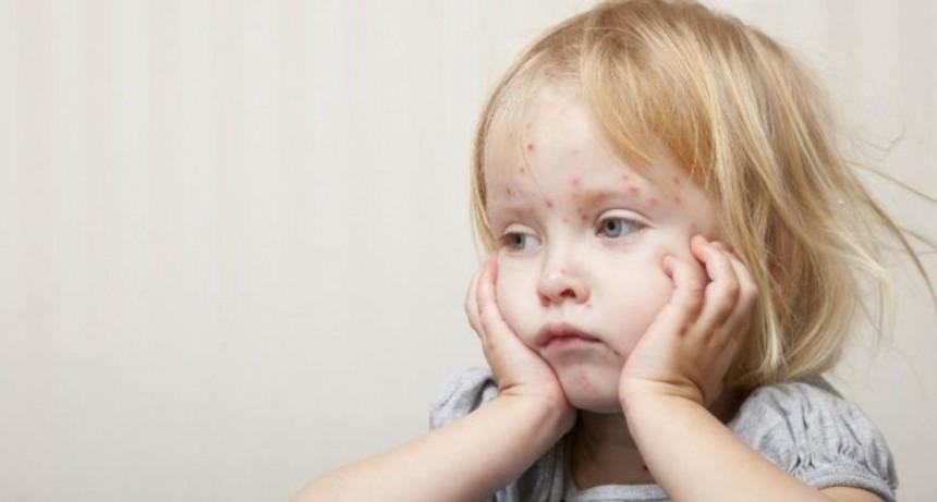Nena simuló tener varicela para no ir al colegio pero cometió error garrafal