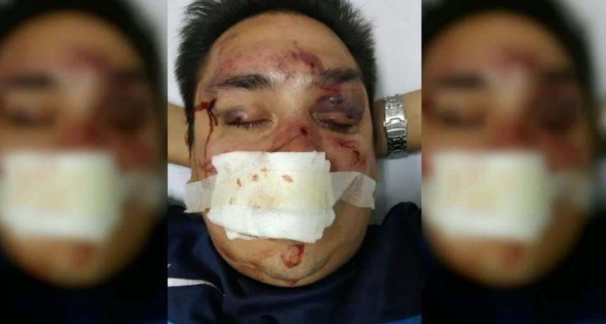 Brutal ataque de barrabravas de Racing a un periodista partidario