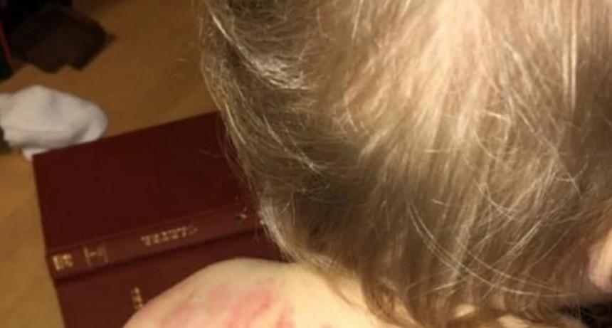 Fue a buscar a su hija de un año y medio a la guardería y descubrió que tenía más de 25 mordidas