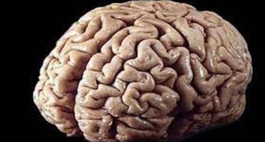 El extraño caso del hombre que tiene cabeza con forma de cerebro