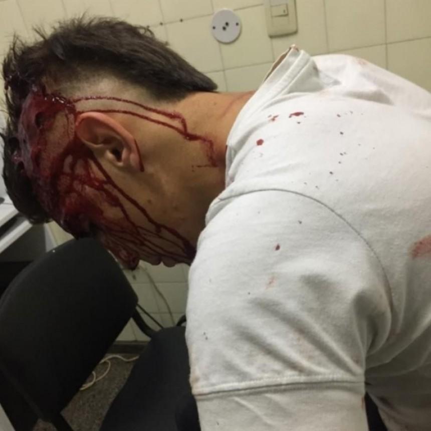 Un joven denunció que fue golpeado por patovicas de un boliche