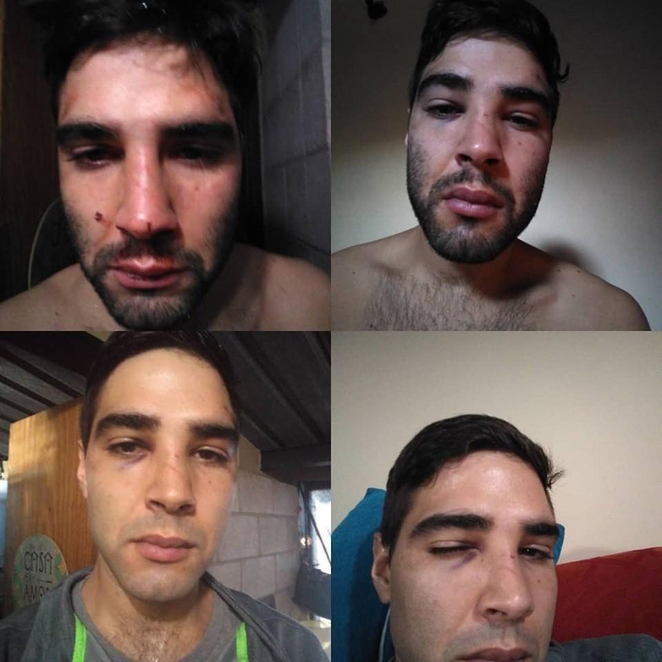 Un hombre denunció que fue agredido por personal de seguridad de un reconocido boliche