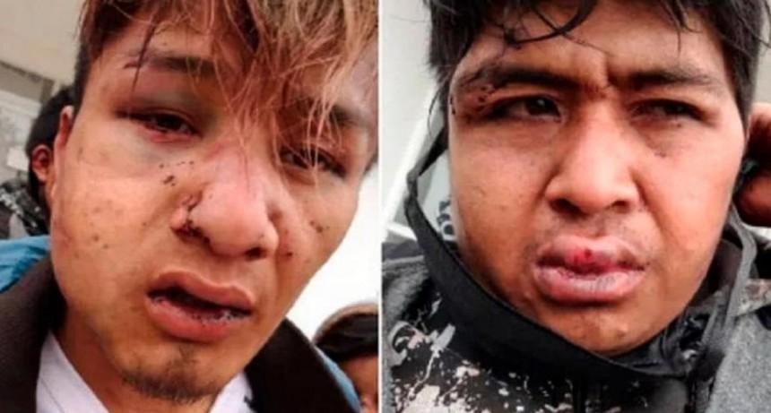 Brutal ataque policial, con torturas y abuso sexual, a cuatro jóvenes qom en  Chaco