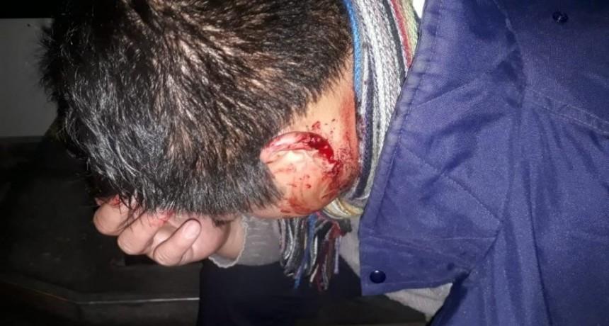 San Luis: le tiraron piedras a un colectivo de Transpuntano, el chófer quedó inconsciente y tuvo que ser internado
