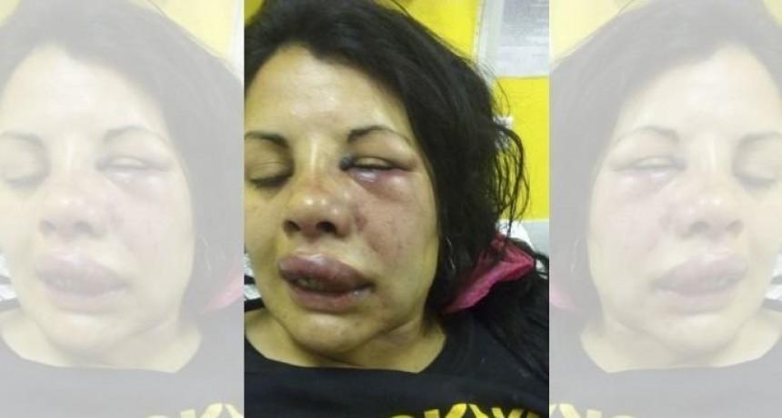 Merlo: una mujer fue golpeada por su pareja