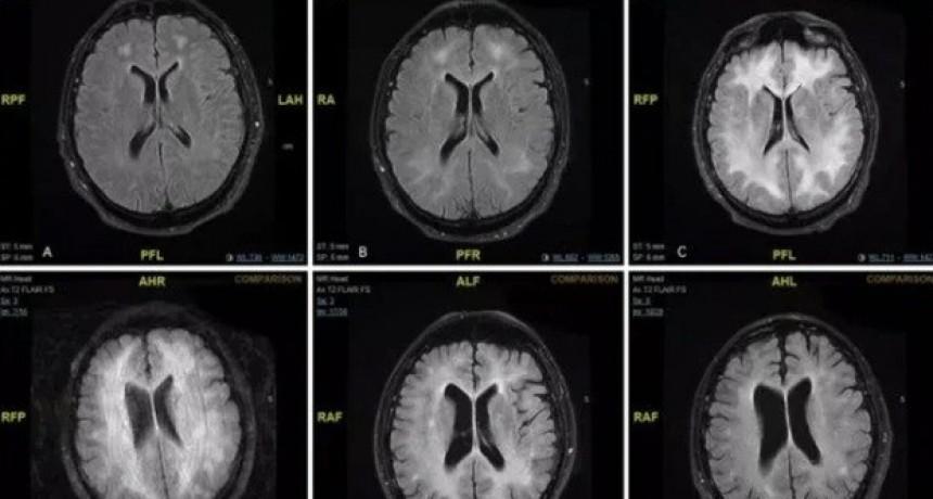 Revelan imágenes de cómo la cocaína come el cerebro de un adicto