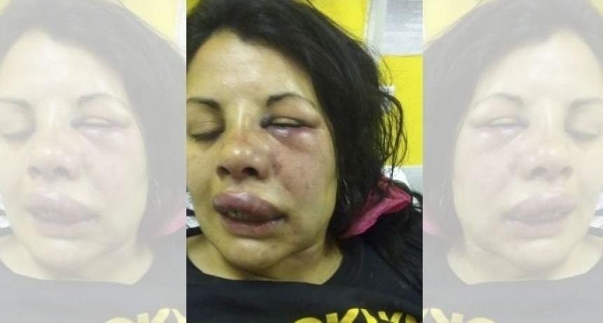 Merlo: detuvieron al hombre que agredió a su pareja