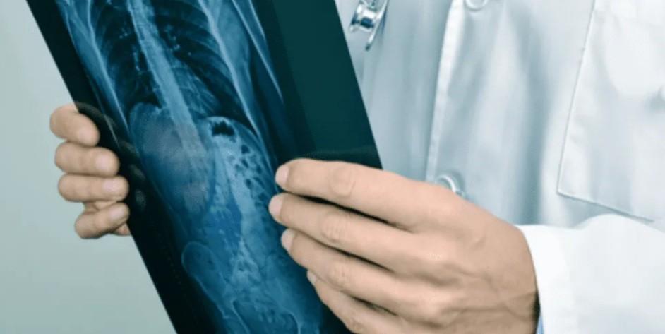 Impactante radiografía muestra el deterioro de un fumador de cigarrillo electrónico