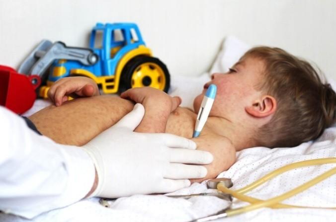 Los casos de sarampión en el país ya suman 55 en lo que va del año y la mayoría es en menores de un año