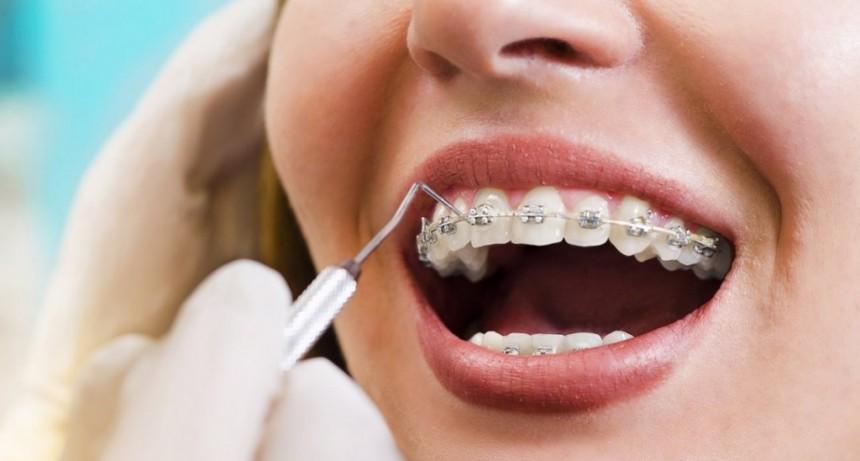 La ANMAT prohibió el uso y la venta de dos productos para tratamientos de ortodoncia