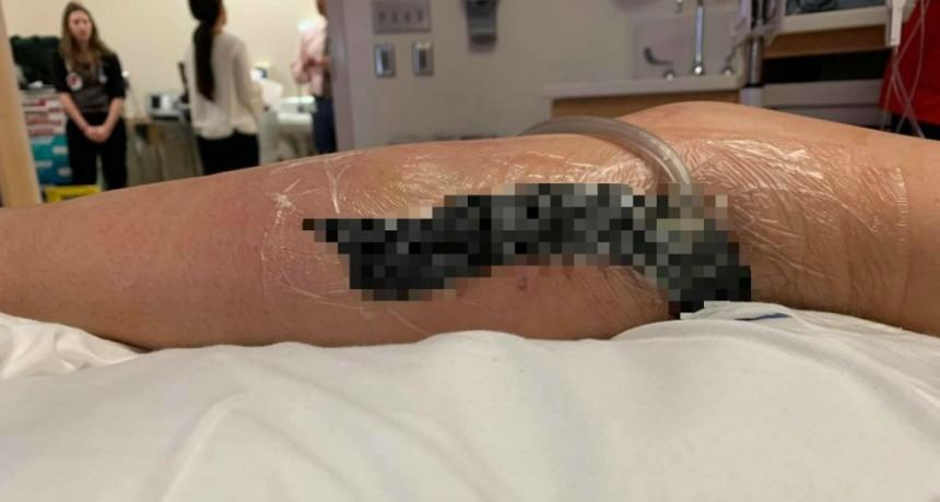 Una nena se fue de vacaciones a la playa y casi pierde la pierna por una bacteria comercarne