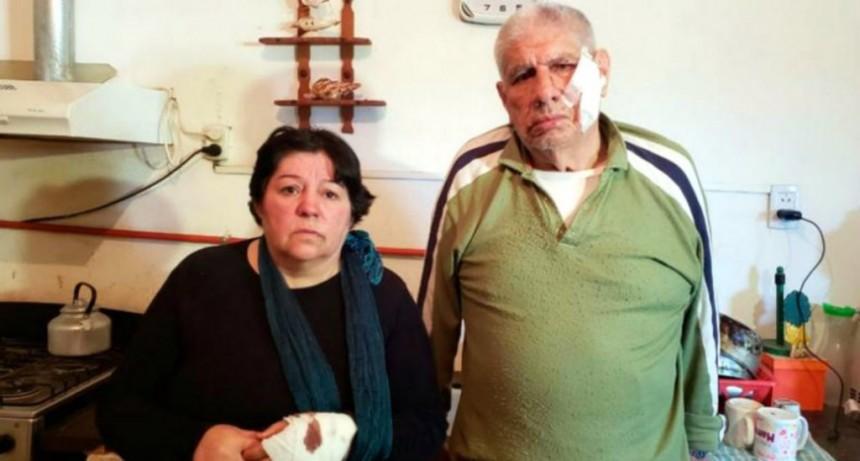 La dueña del dogo que atacó a cuatro personas en Córdoba reconoció que capaz el error fue no tenerlo atado